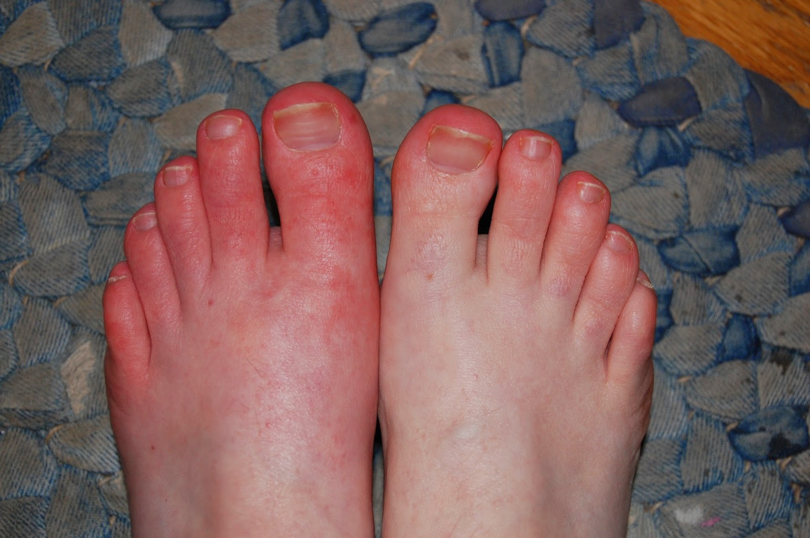 Squishy lump on top of foot - Dr Blake S Response