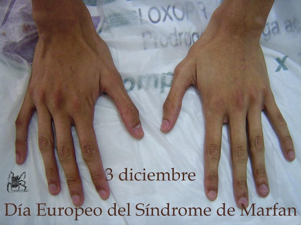 El 3 de diciembre es el día europeo del síndrome de Marfan