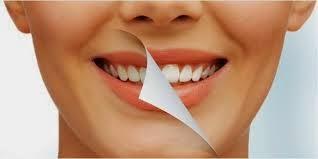 5 Cara Alami Memutihkan Gigi Kuning Dengan Cepat