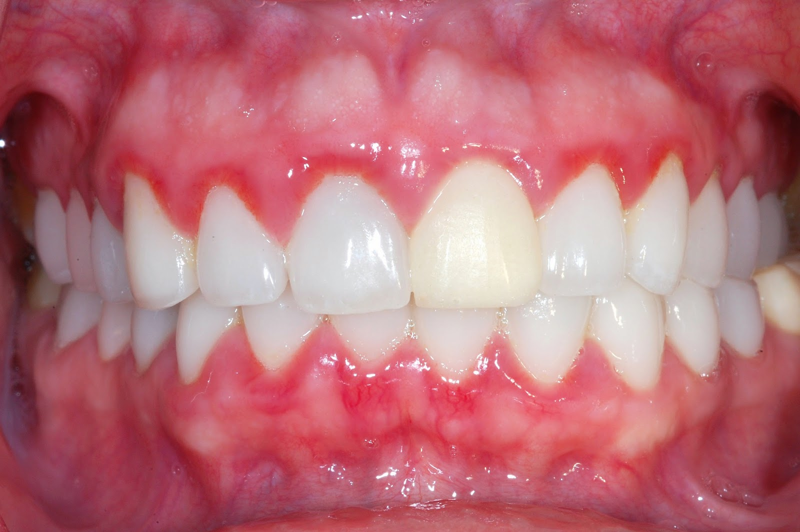 How to get rid of bad breath from gingivitis naturally