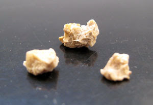 Prevenir pedras nos rins