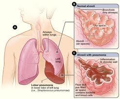 Penyakit TBC/Tuberkulosis