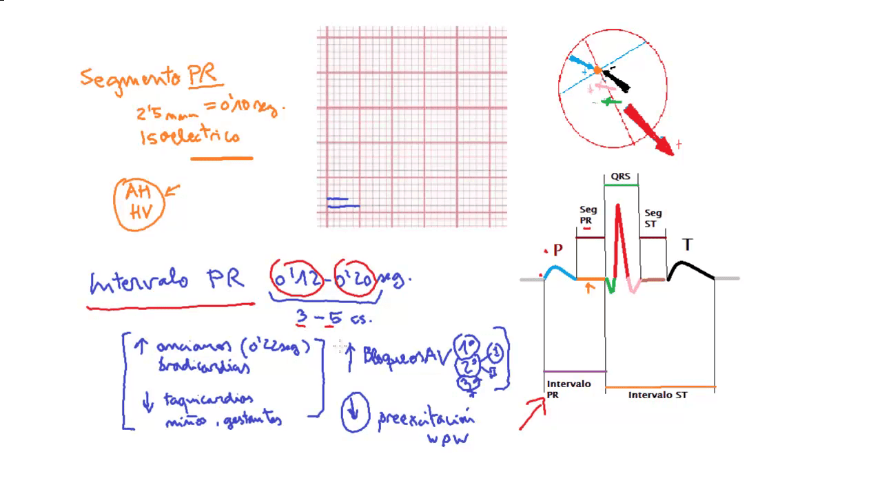 Intervalo PR, electrocardiograma