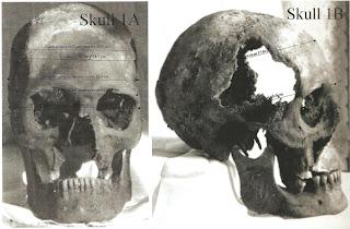 Joseph Smith's Skull