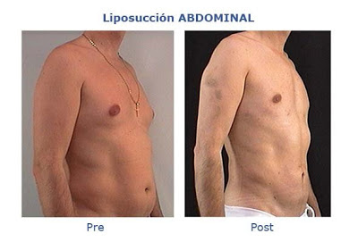 liposuccion abdominal
