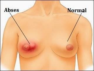 pengobatan herbal abses payudara