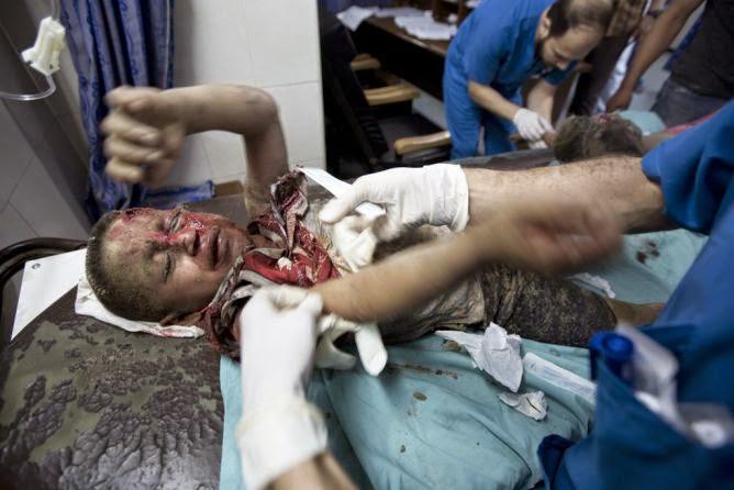 Menio palestino ferido pelo estado terrorista israelense