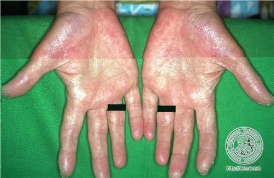 psoriasis on palms of hands and soles of feet