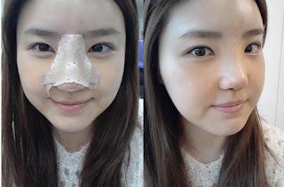 foto sebelum dan sesudah operasi plastik hidung di Wonjin-3