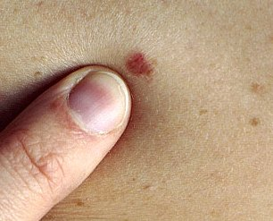 skin cancer symptoms pictures