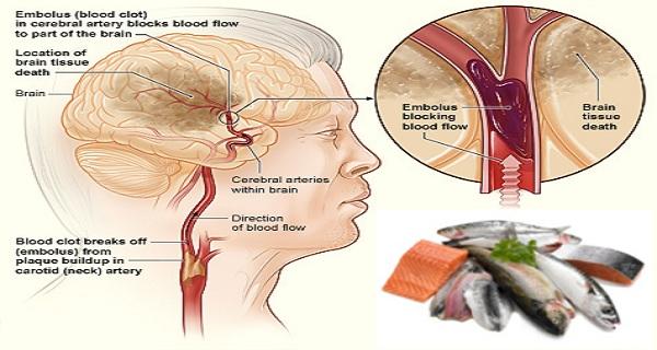 hemorrhagic stroke case studies
