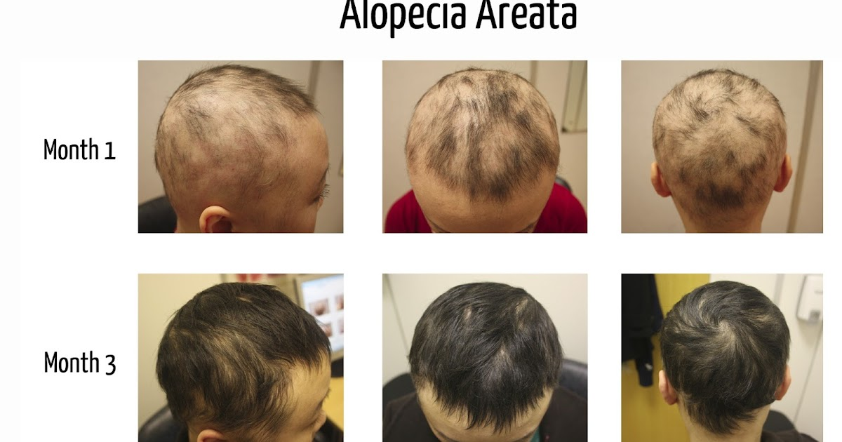 Alopecia Areata All You Need To Know The Belgravia Centre