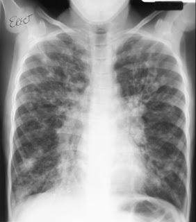 Fibrosis quística (mucovisidosis o enfermedad fibroquistica)