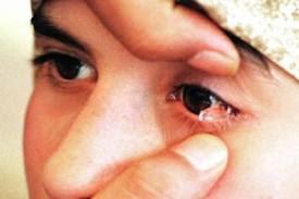 Manfaat dan kandungan air mata