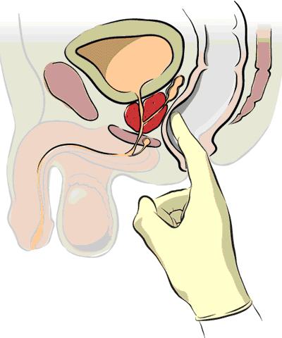 Rektal prostata-undersøgelse med finger i endetarmen