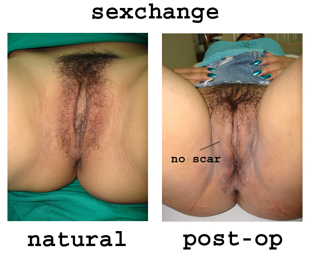 naked female sex change