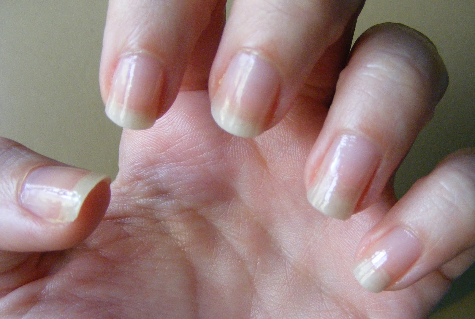 how to fix short nail beds