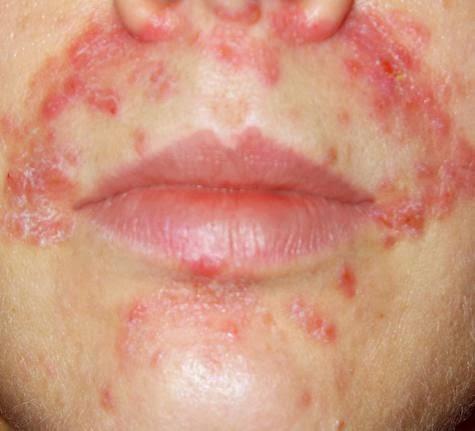 the symptoms of eczema