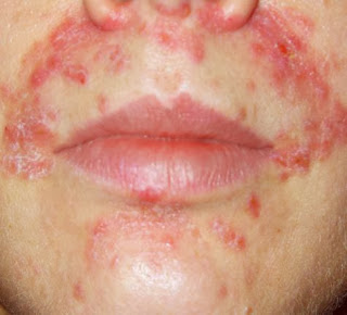 Eczema Skin Causes, Symptoms, Types, Diagnosis, Treatments