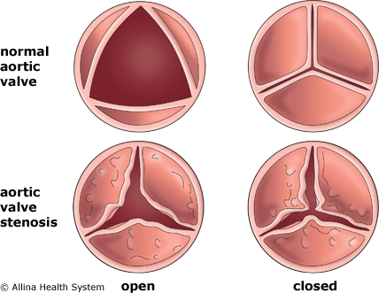 aortic valve stenosis Aortic stenosis: aortic stenosis is when the aortic valve becomes too narrow and in turn reduces the amount of blood that can flow through it if the narrowing is.