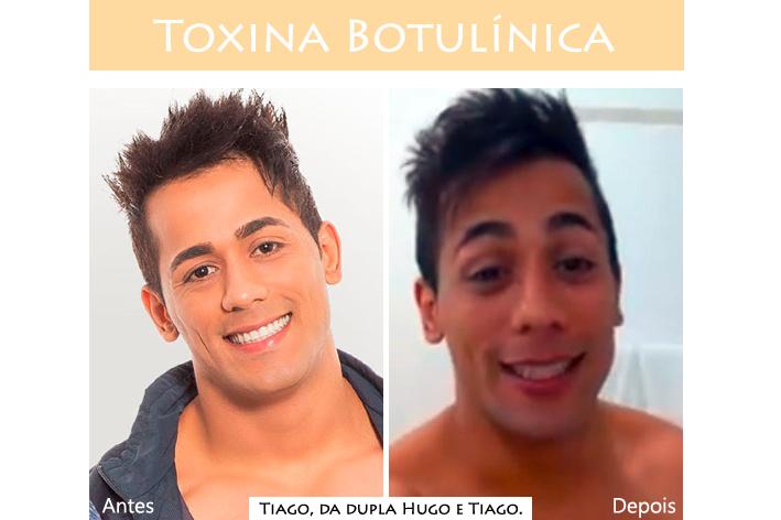 Azulay e Zanella, Joinville, Blog de acessórios, Botox, Moda, estilo, saúde