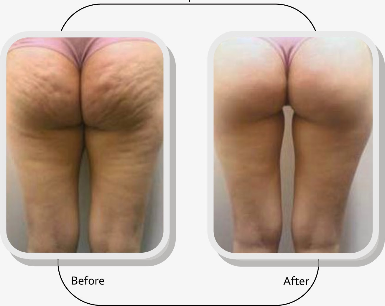 ways get rid of the cellulite