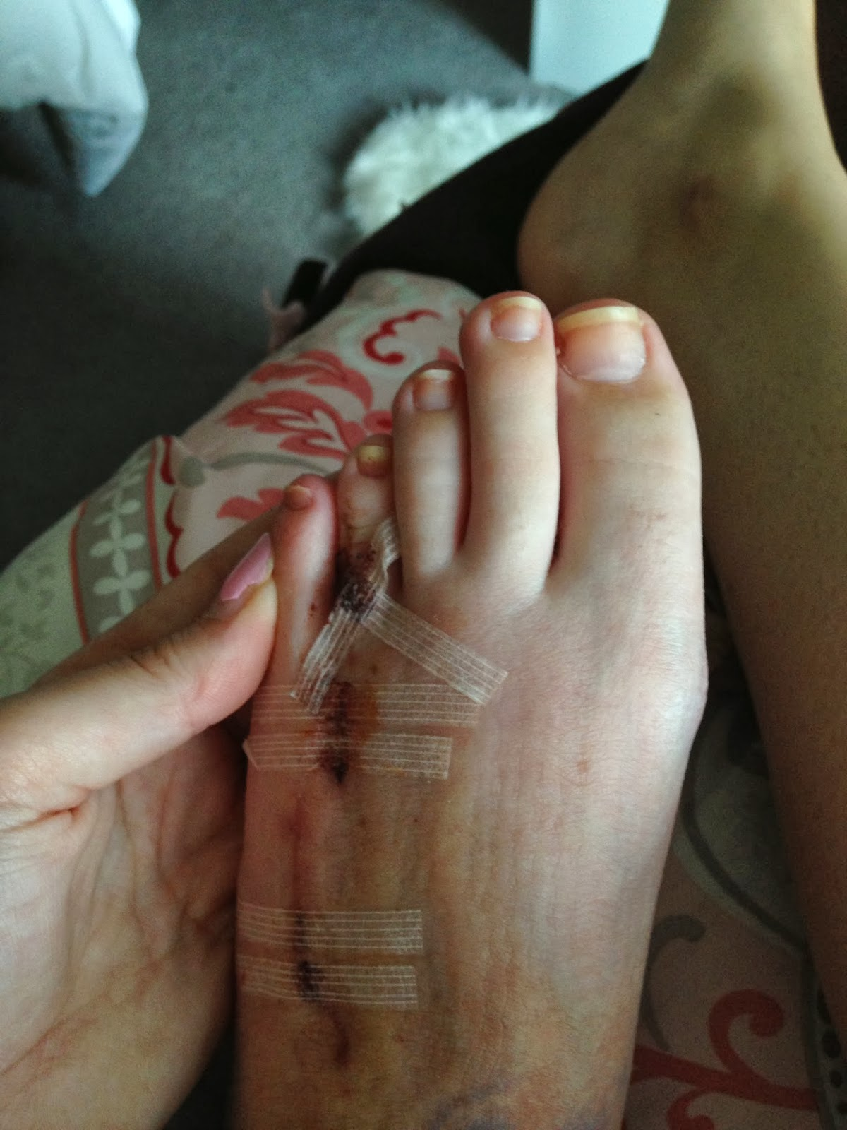 how to prepare for foot surgery