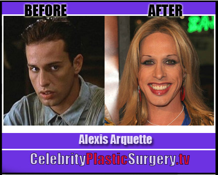 Alexis Arquette Before and After