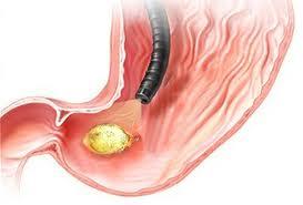 Remediu naturist pentru ulcer gastroduodenal