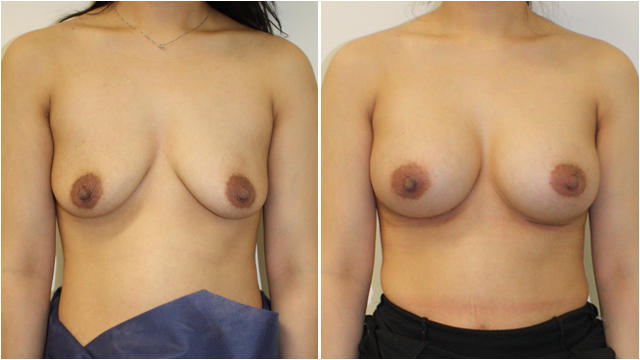 natural breast c