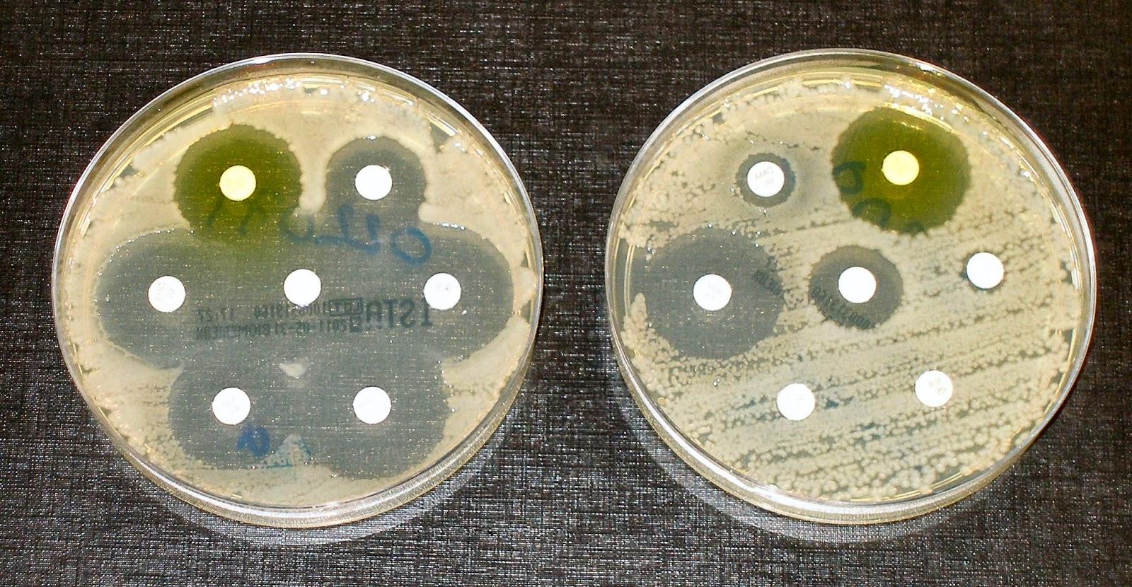 Predicting Antibiotic Resistance