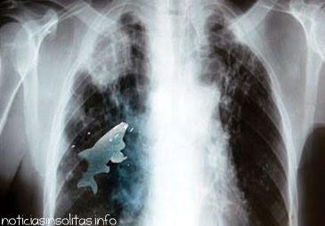 pez vivo en pulmon