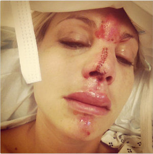Lisa D Amato Photo After Her Accident