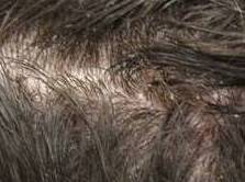 Home remedies for dandruff: Find out a dandruff cure that ...
