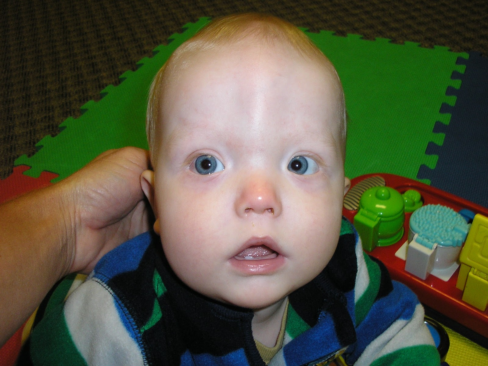 untreated Adults with craniosynostosis