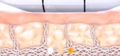 Ultrassom Microfocado para tratar flacidez: o lifting sem cirurgia