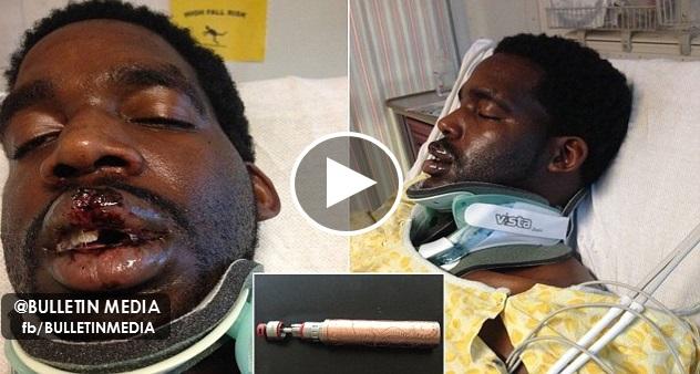 [VIDEO] Lelaki Patah Leher, Hilang Gigi Vape Meletup Di Mulut