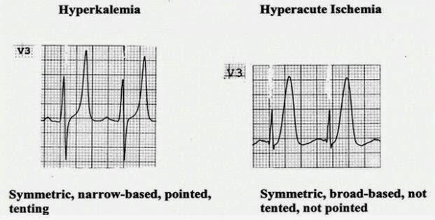 If the clinician can accurately interpret the information presented on the patientu0027s ECG according to the guidelines above he can be sure that he has ...  sc 1 st  Hugo Naijaman & Hugo Naijaman: Reading an ECG