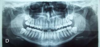 radiografia muelas cordales juicio