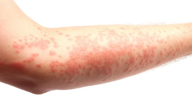 http://obatipenyakitkulit.blogspot.com/2013/07/obat-alergi-atasi-gatal-pada-kulit.html