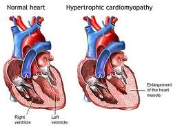 arrhythmogenic right ventricular dysplasia symptoms