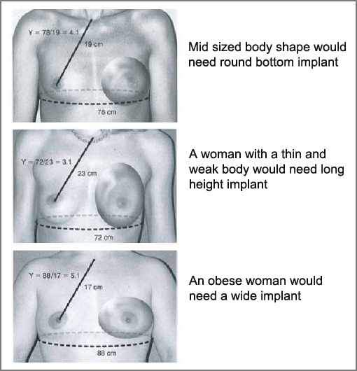 Choosing the Right Breast Implant Size - PlasticSurgeryGuide