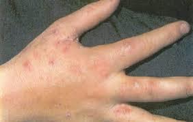 مرض الاكزيميا ,امراض الجلد ,يد مصابه بالاكزيميا ,احمرار الجلد ,بقع حمراء  في الجلد ,http://www.sihati.com/2013/10/Treatment-Alakzemia.html