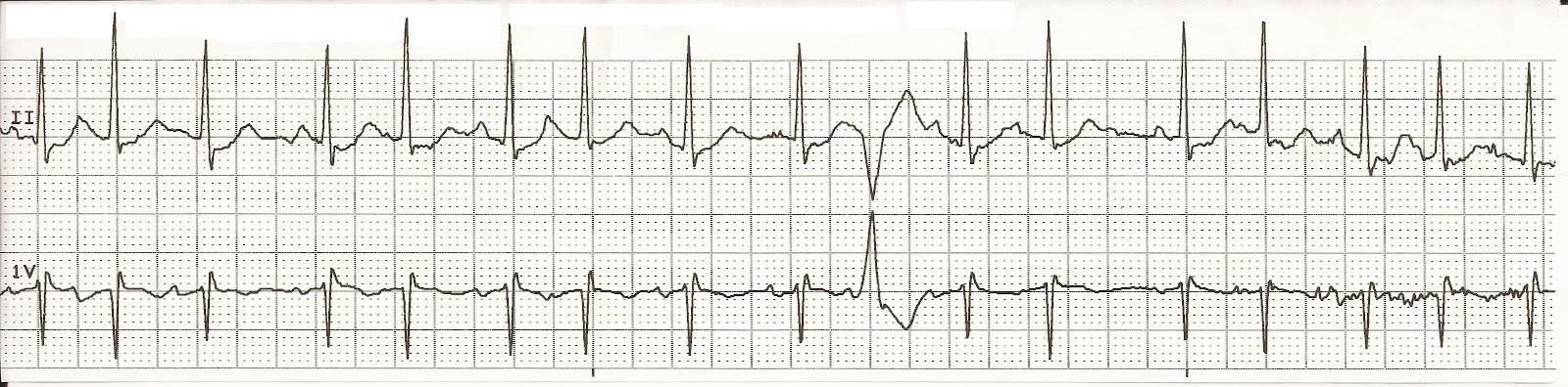 Float Nurse: EKG Rhyth...