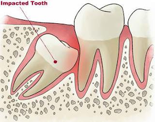 cabut gigi geraham bongsu, gigi geraham bongsu, geraham bongsu, cabut gigi