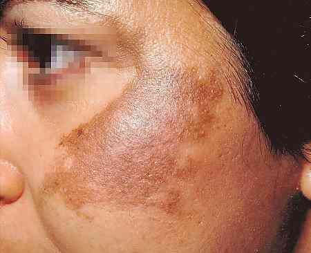 Retirar pigmentary nota a Permanente de cabelo de raio laser
