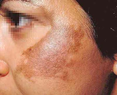 Manchas escuras na pele