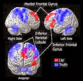 كشف علمي يحدد المنطقة المسؤولة عن الكذب في الدماغ