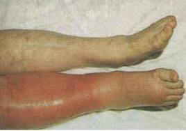 deep-vein thrombosis of the upper extremities