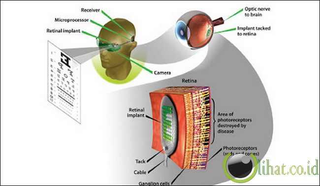 Retina Buatan